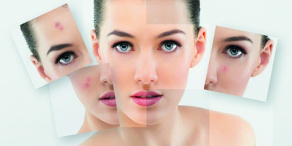 3 Top Acne Skin Care Tips